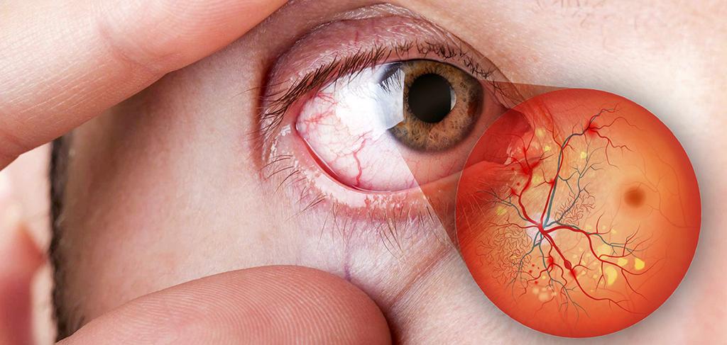 Doenças da retina: você as conhece?
